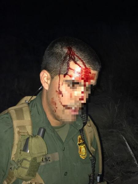 Assaulted Tucson Station Border Patrol agent with bloody head