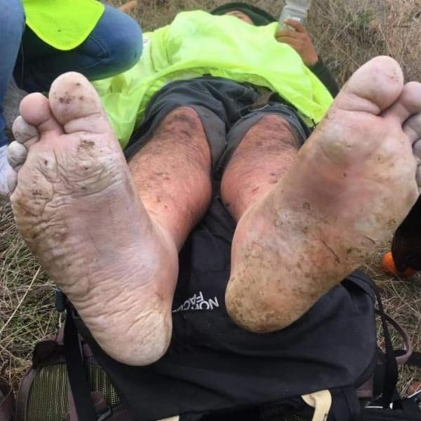 After a 3-day search, the rescued man suffered from a significant ankle injury and frostbite to his feet and legs.   He had to be airlifted out of the harsh terrain due to his severe condition.