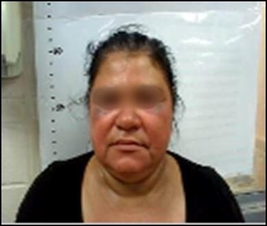 Honduran woman beaten by smugglers who attempted to rape her daughter